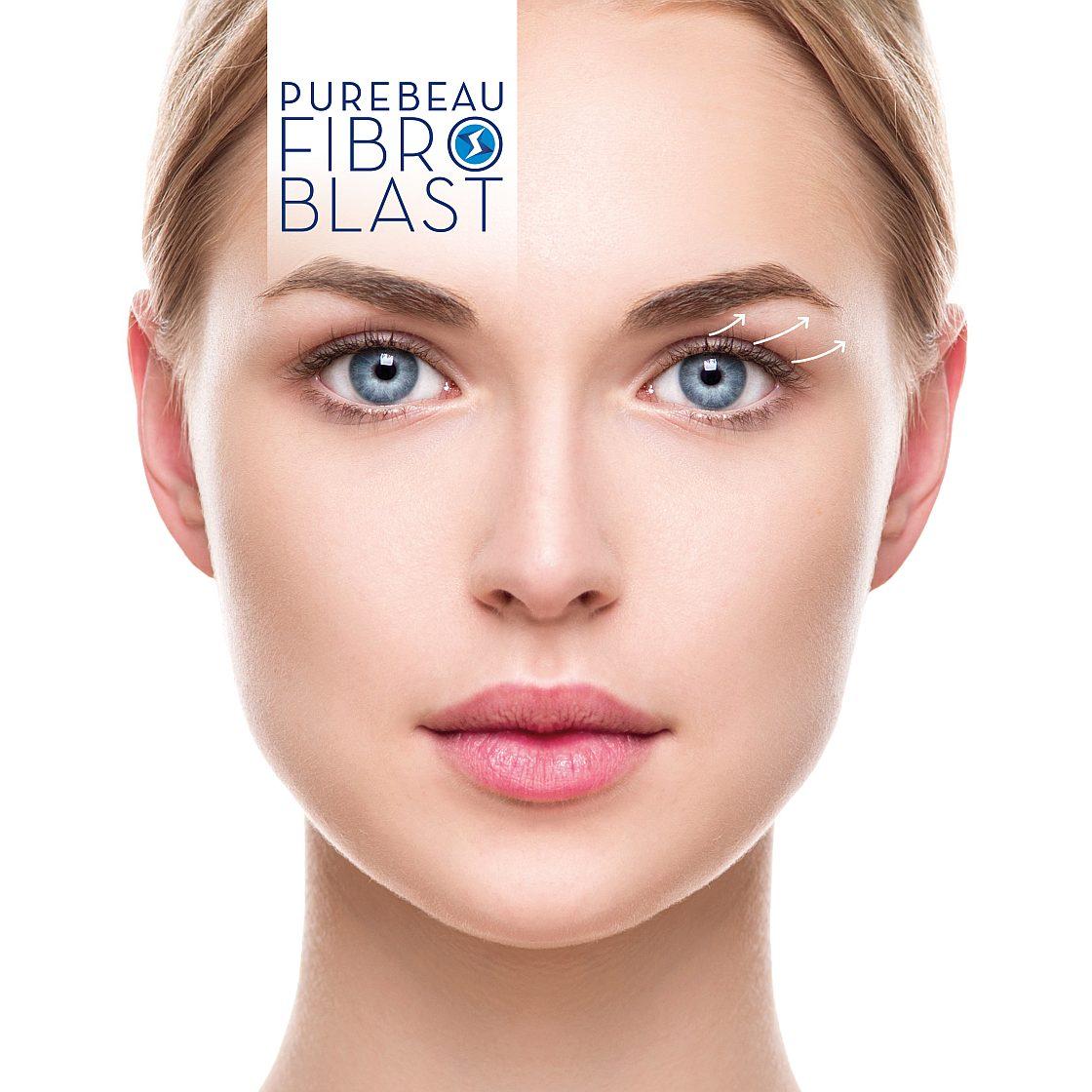 PB FIBROBLAST-Model_1-1120x1120